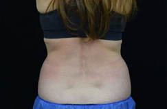 CoolSculpting™ Before